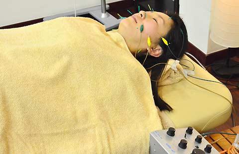 お顔の電気鍼イメージ