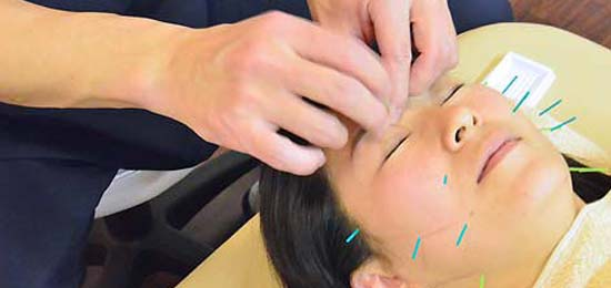 美容鍼灸スタンダードコース施術イメージ