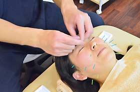 美容鍼の施術